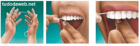 Como Passar Fio Dental nos Dentes